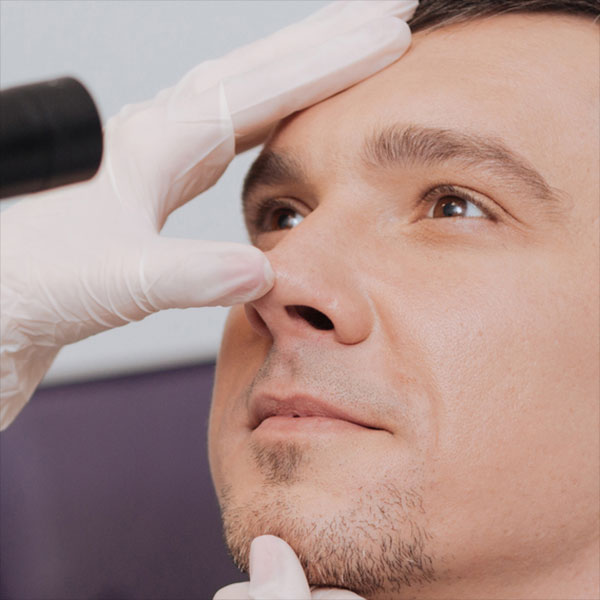 Nose Doctor in Hoover, AL